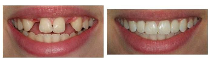 Whole upper mouth restoration by Francisco Parnelli in Curridabat SJ