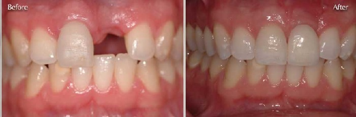 Single implant by Francisco Parnelli in Curridabat SJ