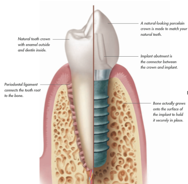 The Future Of Dental Implants Is Available Today by Francisco Parnelli in Curridabat SJ